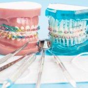 La mejor clínica de ortodoncia en Pinto